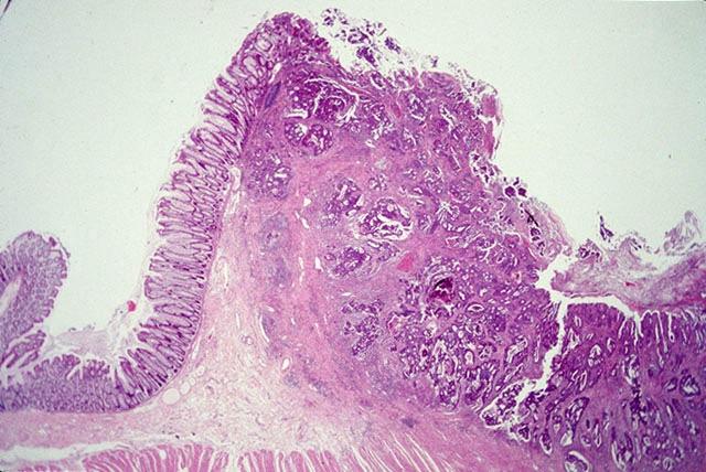 Adenocarcinoma Colon Histology | www.pixshark.com - Images ...