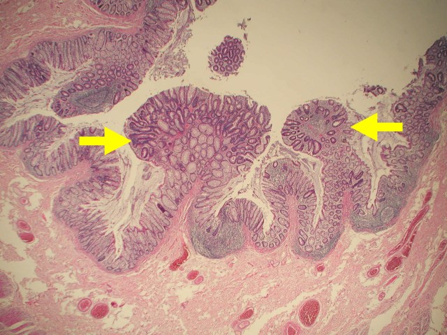 Body malgnant neoplasm of anus